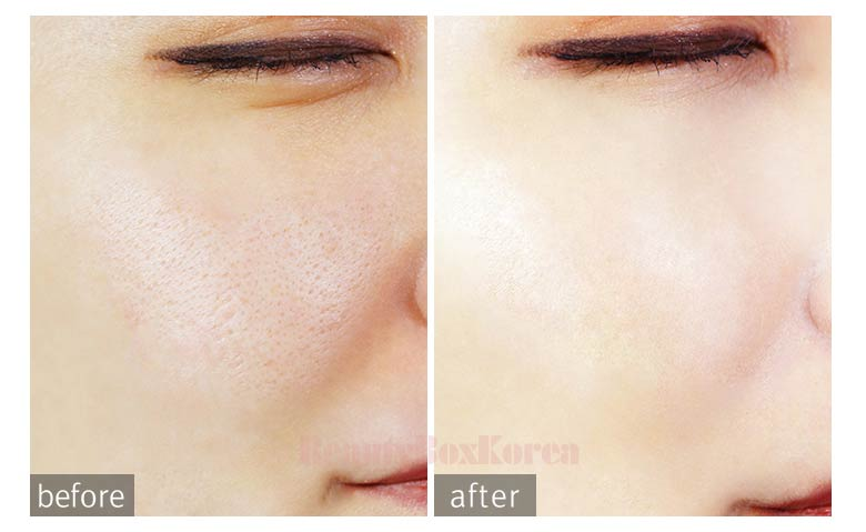 Best makeup for pitted scars